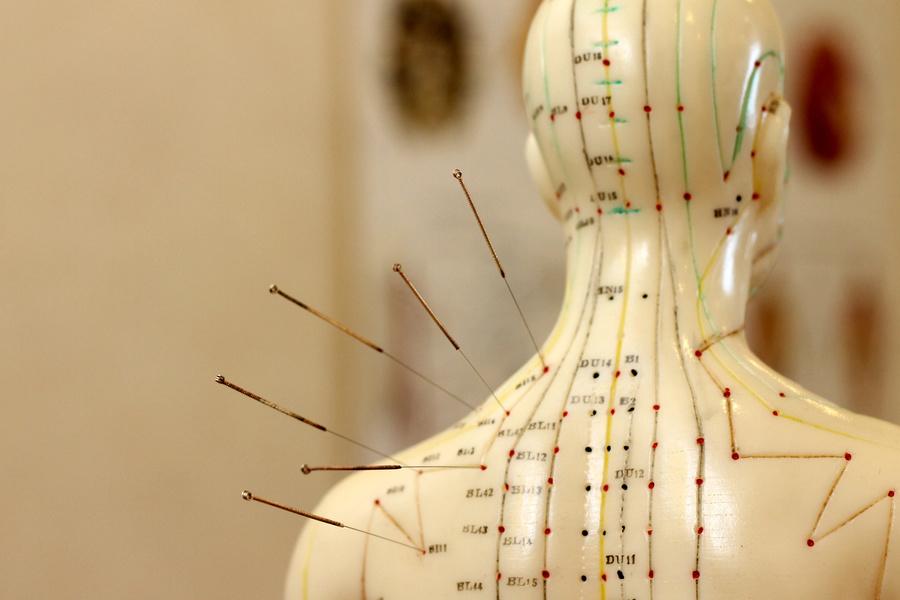 Wat is acupunctuur ? Hoe gaat acupunctuur in zijn werk? Wanneer naar een acupuncturist?